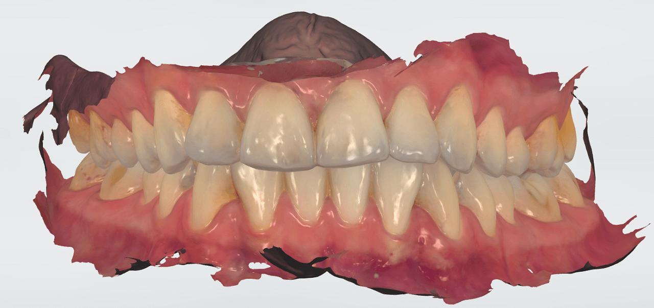 Имплантация зубов в Архангельске – Импластом