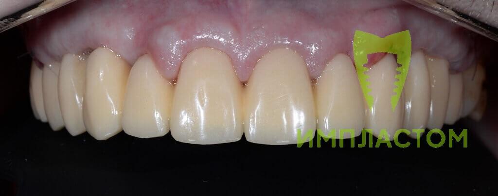 Протез зубов на 4 – 6 имплантах