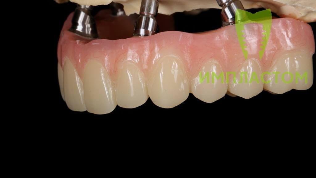 Протез зубов на 4 имплантах