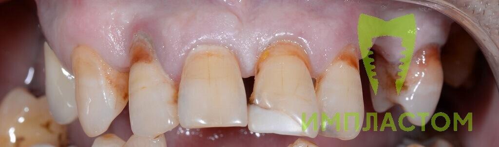 Имплантация зубов в Архангельске