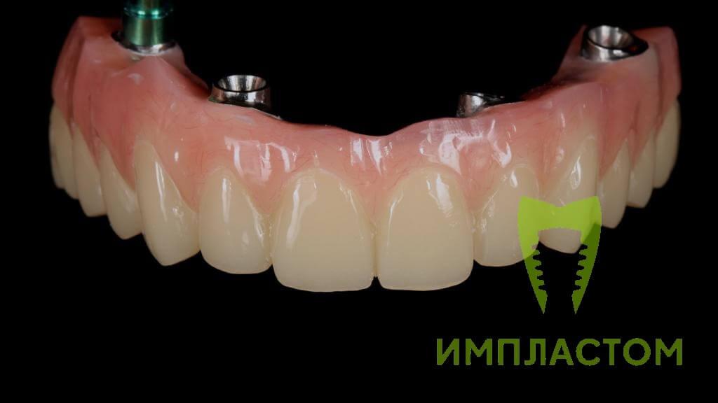 Зубной протез на 4 имплантах